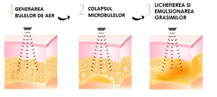 calvitia cu ultrasunete
